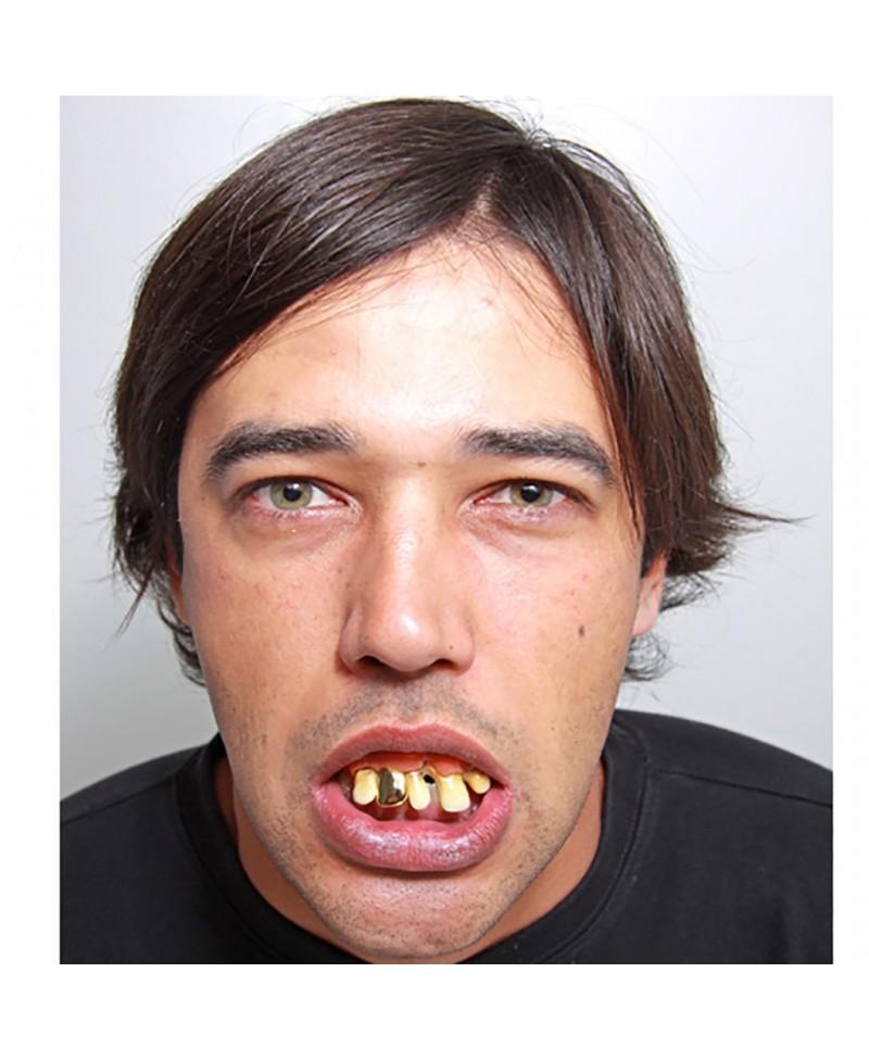Dentadura con diente de oro